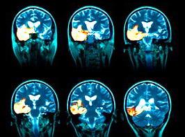 agyvelogyulladásos agy MRI-felvétele